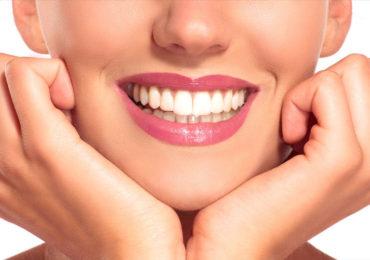 branqueamento-dentes